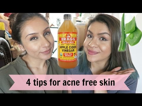 DIY 4 Tips to get rid of acne cystic acne | Raji Osahn