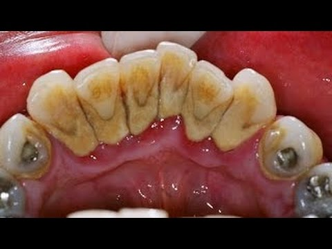 Tartar removal teeth | Removing the Hardened Old plaque with self-made dental powder right At Home