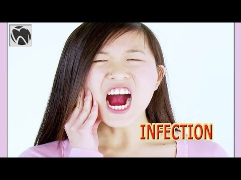 Wisdom Teeth Infection Symptoms After Removal | Wisdom Teeth