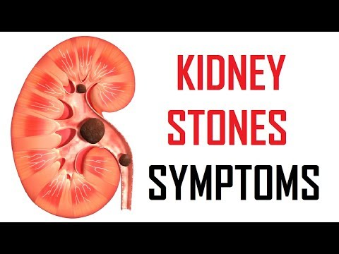 7 Early Signs Of Kidney Stones | Kidney Stones Symptoms