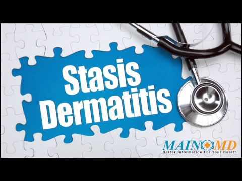 Statis Dermatittis ¦ Treatment and Symptoms