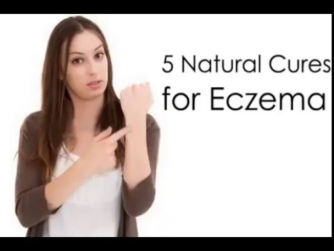 How to Get Rid of Eczema : Tips 5 Home Remedy for Eczema