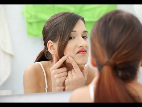 How to Get Rid of Pimples - Pimples Removal At Home