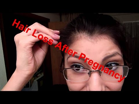 Hair Loss After Pregnancy Remedies