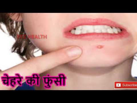 20 मिनट में चेहरे के मुहांसे और दाग-धब्बो को जड़ से खत्म कर देगा ये इलाज | Pimples Treatment