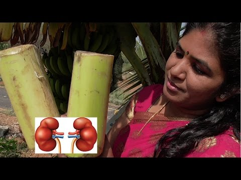 HOME REMEDY FOR KIDNEY STONES | GALL BLADDER STONE | COOKING PLANTAIN STEM