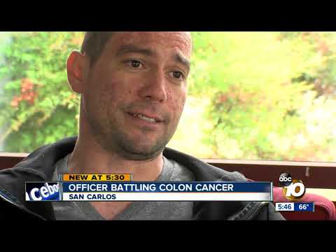 San Diego officer facing stage four colon cancer