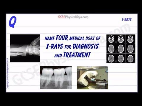 Medical Uses of X-Rays - GCSE Physics
