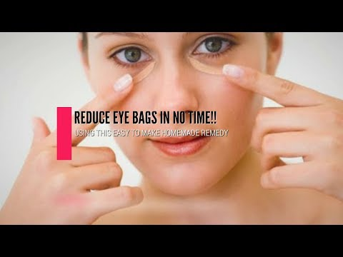 Easy Homemade Remedy To Reduce Eye Bags In No Time