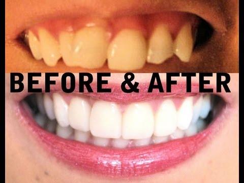 My TEETH (Before & After) Invisalign, Zoom Teeth Whitening, Veneers