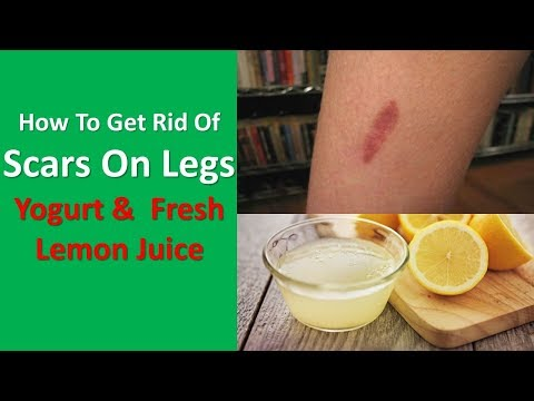 How To Get Rid Of Scars On Legs Naturally With Home Remedies With Yogurt &  Fresh Lemon Juice