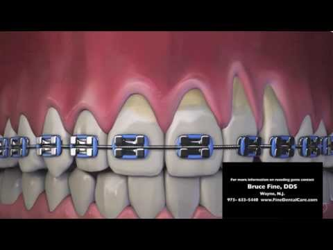 Receding Gums New Jersey Dentist Shows How Braces May Cause Recession