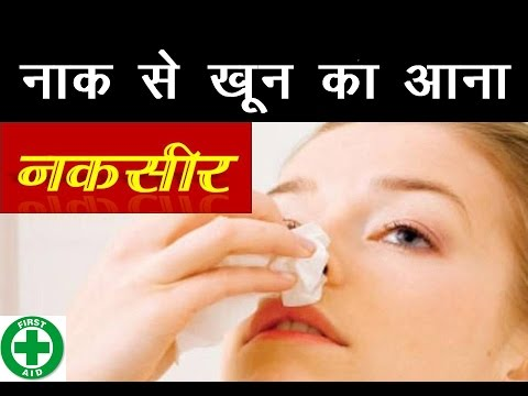 Nose Bleeding Treatment नाक से खून आने पर उपचार