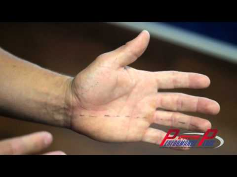 Numbness in Fingers & Hand - Huntington Beach Chiropractor - Chiropractic Clinic Orange County