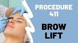 Brow Lift Procedure 411