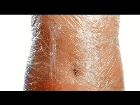 How to Remove Stretch Marks Using Vicks Vaporub  | SuperWowStyle Prachi
