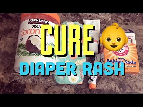 CURE DIAPER RASH FAST