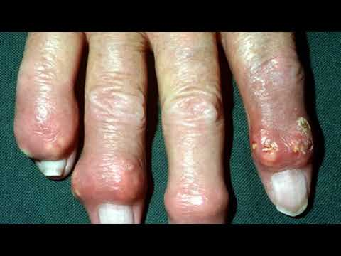 How Do Healthcare Providers Diagnose Gout- When Should Gout Be Treated