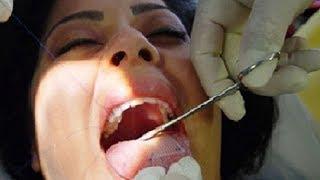 INSANE Beauty Treatments