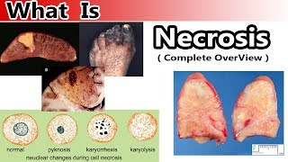 What is Necrosis ( Complete Overview )