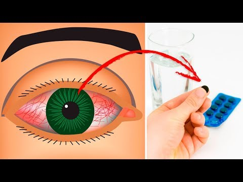 How To Cure a Pink Eye Naturally