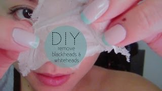 How To Remove Blackheads Whiteheads Hausofcolor