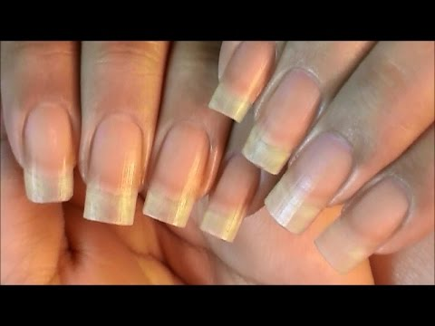 Peeling Nails Treatment & Prevention