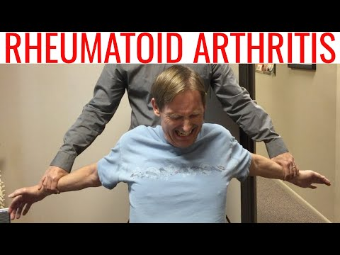 Chiropractor Helps Rheumatoid Arthritic patient GET RID OF Neck, Shoulder, & Foot PAIN