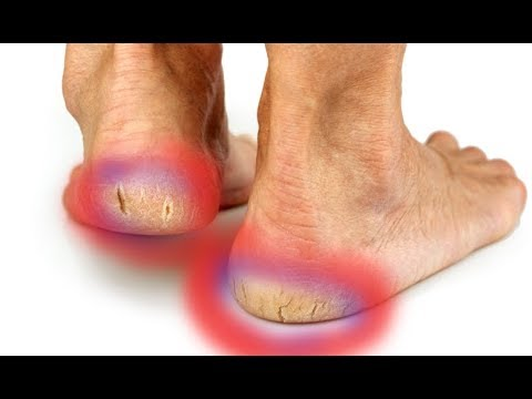 How to Repair Cracked And Dried Feet At Home Fast - Dry Cracked Heels Treatment
