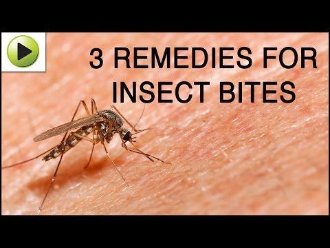 Insect Bites - Natural Ayurvedic Home Remedies