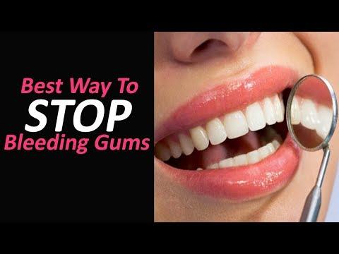 Best Way To Stop Bleeding Gums