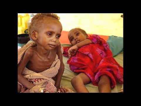 Millennium Development Goal #1 Eradicate Extreme Poverty & Hunger