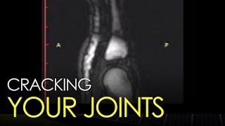 What happens when you crack your joints?