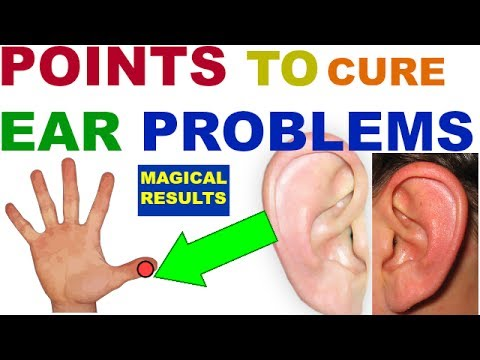 Sujok Therapy For Ear||Pain||Tinnitus||Block||Congestion||Problems||Acupressure||Points||DEAFNESS