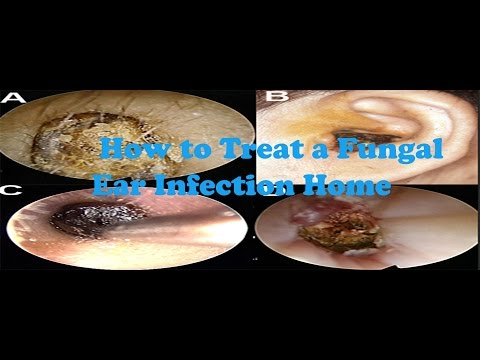 Fungal Ear Infection | How to Treat a Fungal Ear Infection |  Home Remedy