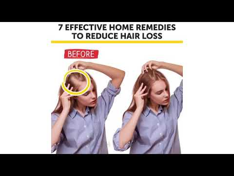 7 Effective home remedies to reduce hair loss