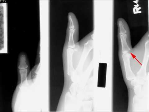 Gamekeeper's thumb