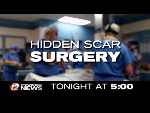 Tonight at 5: Hidden Scar Surgery