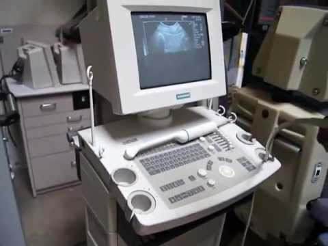Refurbished Ultrasound Machines for Sale Siemens Sonoline Prima