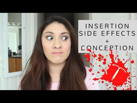 Mirena Review *Insertion, Removal, Side Effects + How long it took me to conceive* ❤