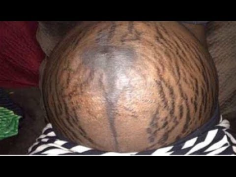 GET RID OF STRETCH MARKS IN 30 DAYS / STRETCH MARK REMOVAL