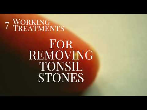 7 smashing treatments for Tonsil stone Removal