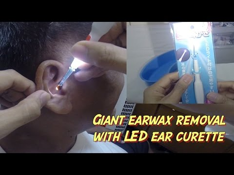Giant Earwax Removal with Lighted Ear Curette from Japan