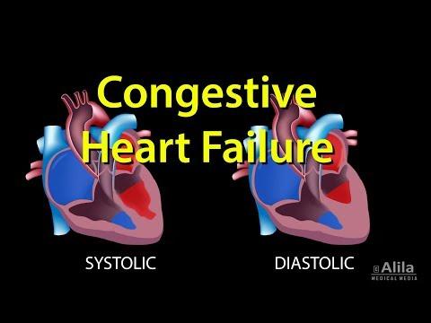 Congestive Heart Failure: Left-sided vs Right-sided, Systolic vs Diastolic, Animation.