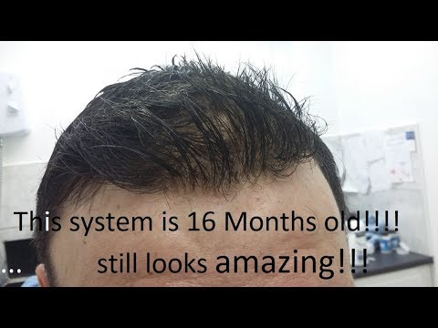 Hair Replacement System revisited. 16 month old hair system. Still looks amazing