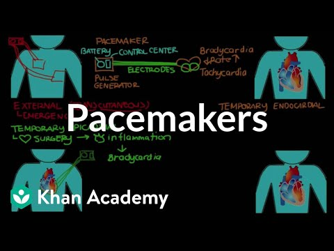 Pacemakers | Circulatory System and Disease | NCLEX-RN | Khan Academy