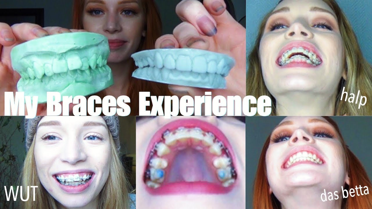 """3 YEARS OF BRACES IN UNDER 30 MINS 