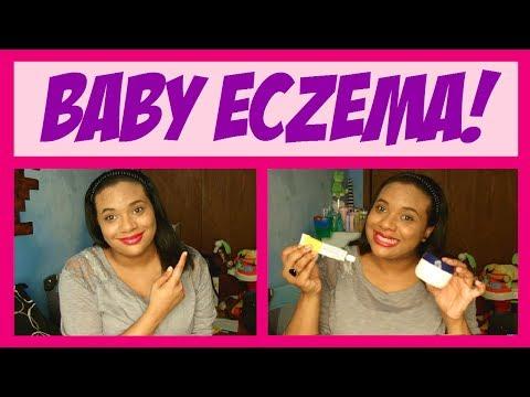 BABY DRY SKIN & ECZEMA! Tips & tricks!