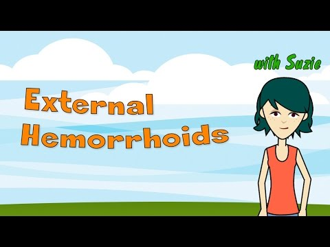 External Hemorrhoids - Discover How to Get Rid of Very Painful External Hemorrhoids Quick and Ea