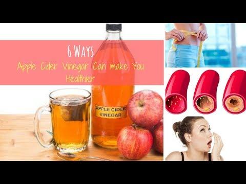 6 Health Benefits of Apple Cider Vinegar You Should Know
